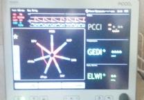 РiCCO  әдісімен   орталық  гемодинамикаға мониторинг